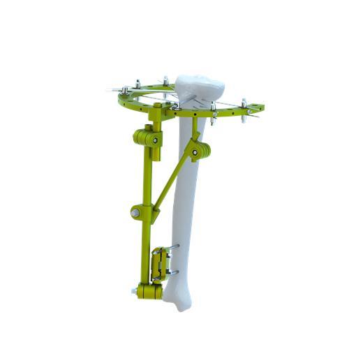 Tubular External Fixator
