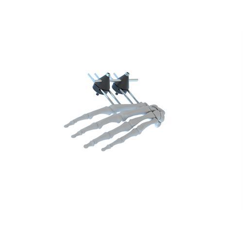 Anatomi Mini Tubular Finger Fixator